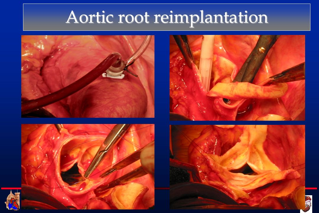 Aortic root reimplantation