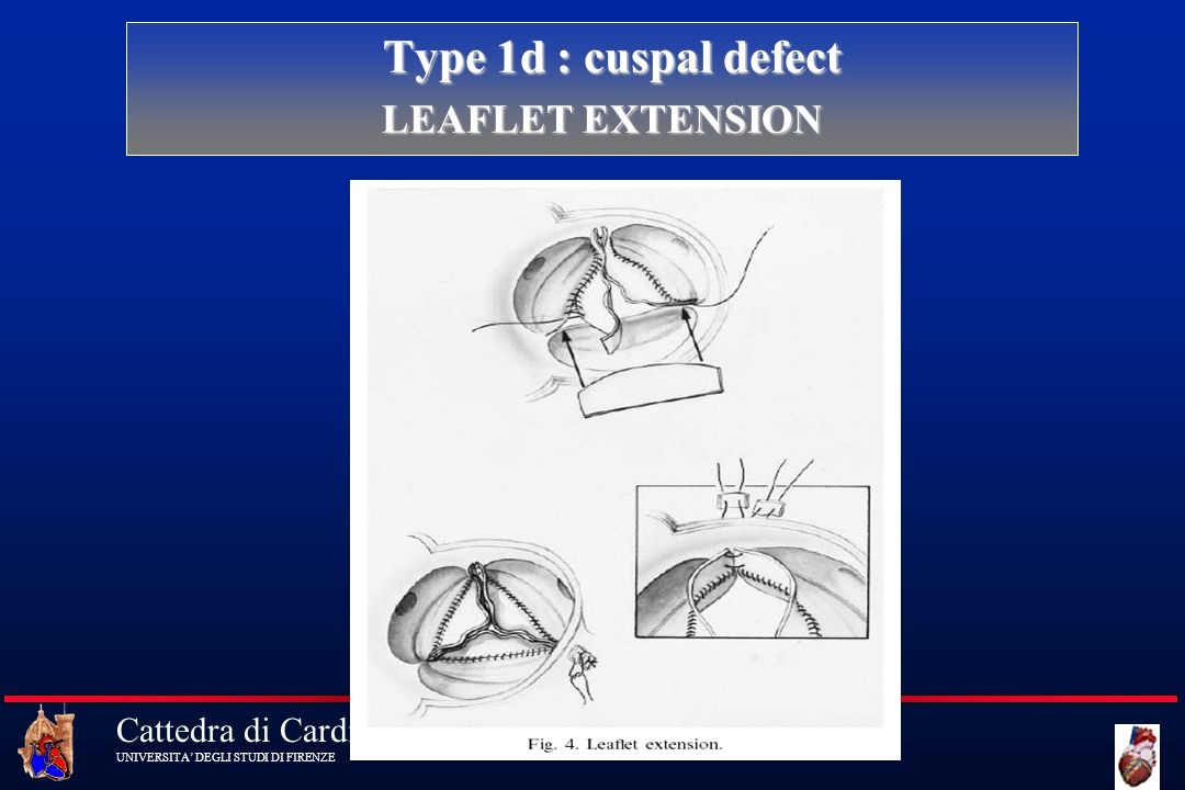 Type 1d : cuspal defect LEAFLET EXTENSION