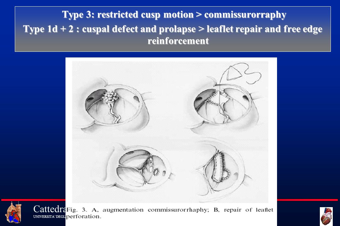 Type 3: restricted cusp motion > commissurorraphy