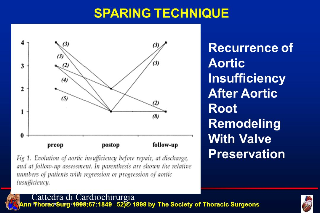 SPARING TECHNIQUE Recurrence of Aortic Insufficiency After Aortic Root Remodeling With Valve Preservation.