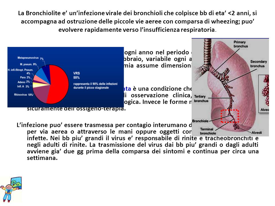 La Bronchiolite e' un'infezione virale dei bronchioli che colpisce bb di eta' <2 anni, si accompagna ad ostruzione delle piccole vie aeree con comparsa di wheezing; puo' evolvere rapidamente verso l'insufficienza respiratoria.