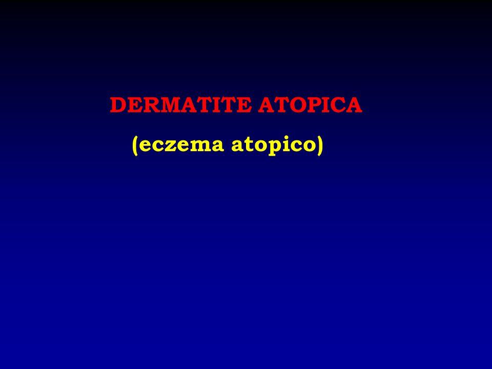 DERMATITE ATOPICA (eczema atopico)