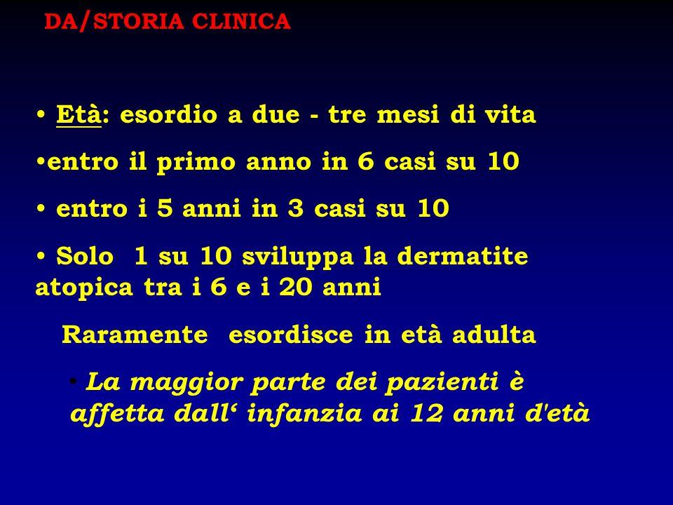 DA/STORIA CLINICA Età: esordio a due - tre mesi di vita. entro il primo anno in 6 casi su 10. entro i 5 anni in 3 casi su 10.