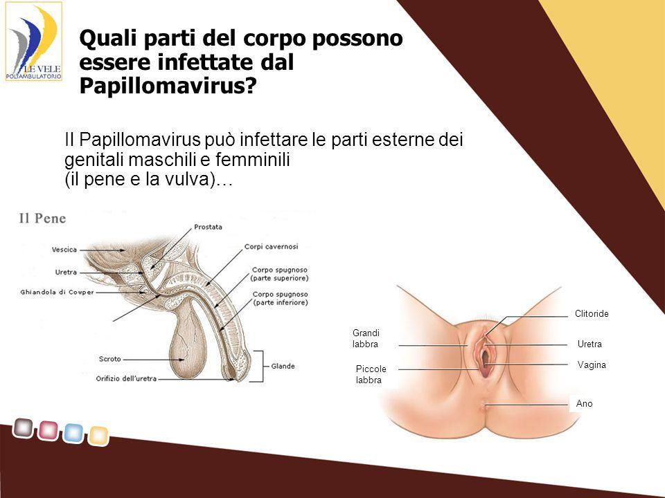 Quali parti del corpo possono essere infettate dal Papillomavirus