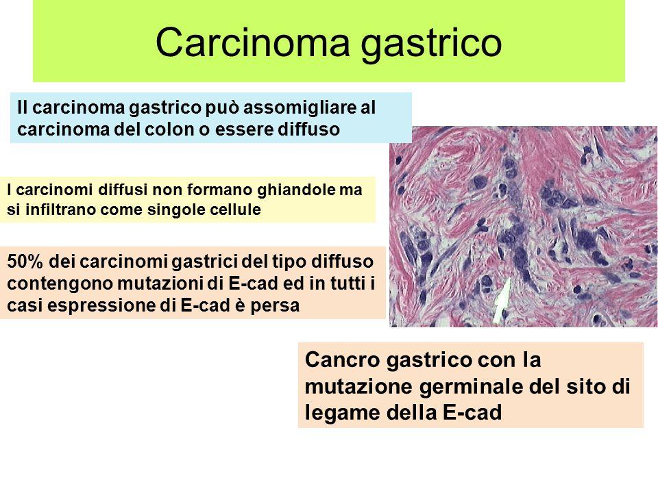 Carcinoma gastrico Il carcinoma gastrico può assomigliare al carcinoma del colon o essere diffuso.
