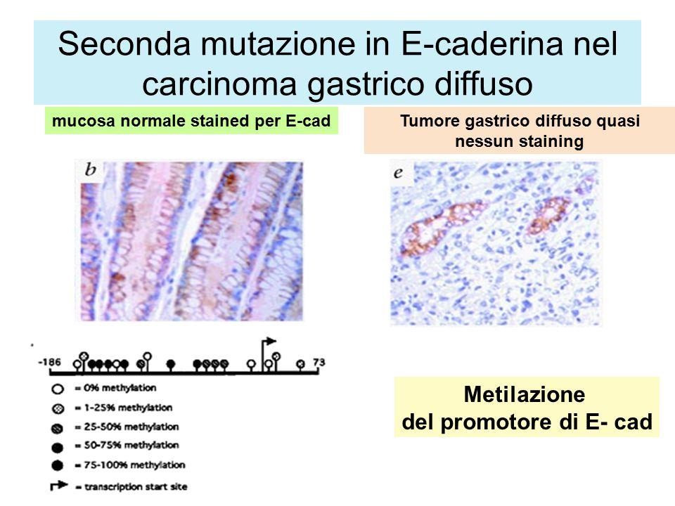 Seconda mutazione in E-caderina nel carcinoma gastrico diffuso