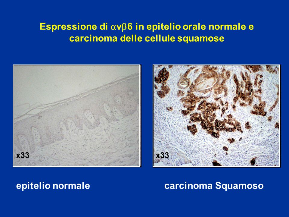 epitelio normale carcinoma Squamoso