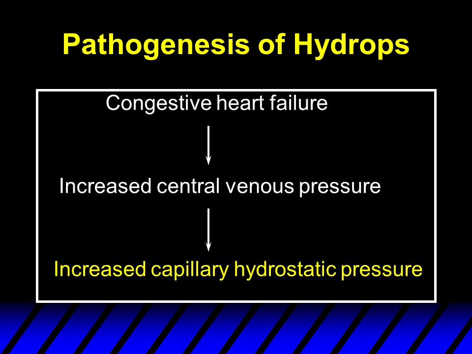 Pathogenesis of Hydrops