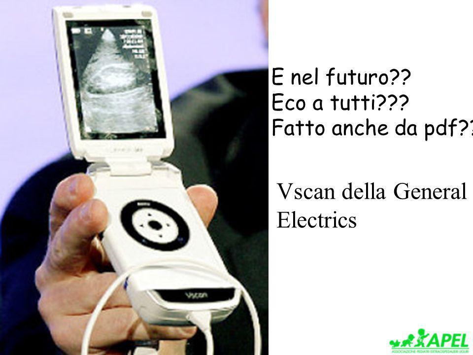 Vscan della General Electrics E nel futuro Eco a tutti