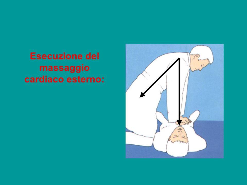 Esecuzione del massaggio cardiaco esterno: