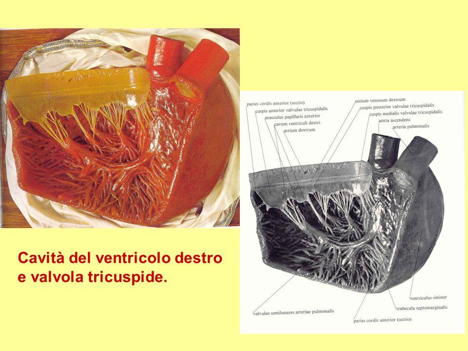 Cavità del ventricolo destro e valvola tricuspide.