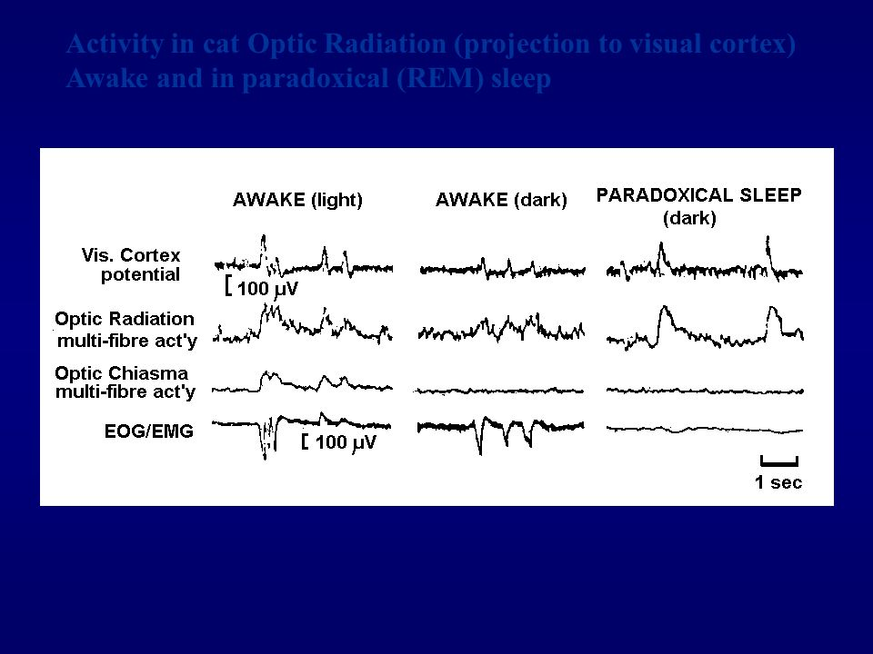 Activity in cat Optic Radiation (projection to visual cortex)