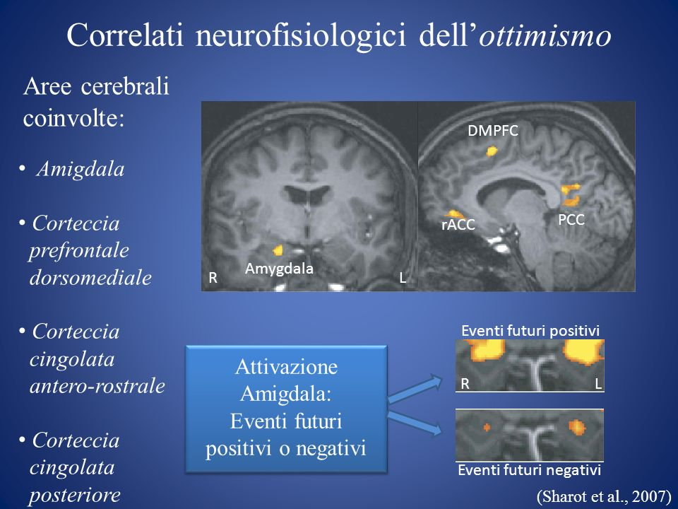 Correlati neurofisiologici dell'ottimismo