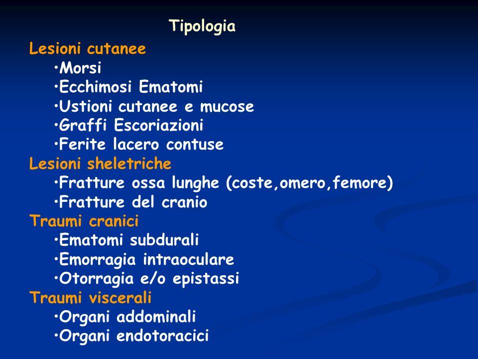 Tipologia Lesioni cutanee. Morsi. Ecchimosi Ematomi. Ustioni cutanee e mucose. Graffi Escoriazioni.