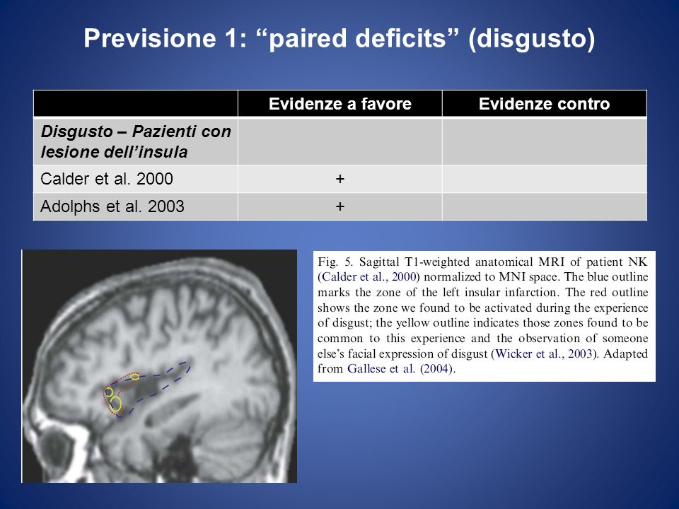 Previsione 1: paired deficits (disgusto)