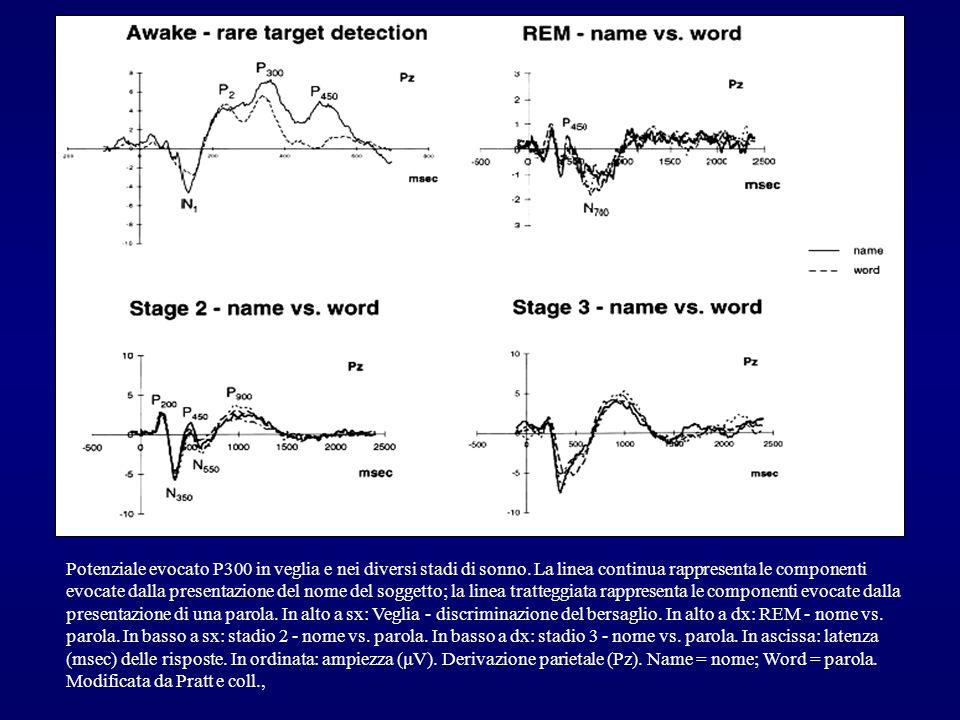 Potenziale evocato P300 in veglia e nei diversi stadi di sonno