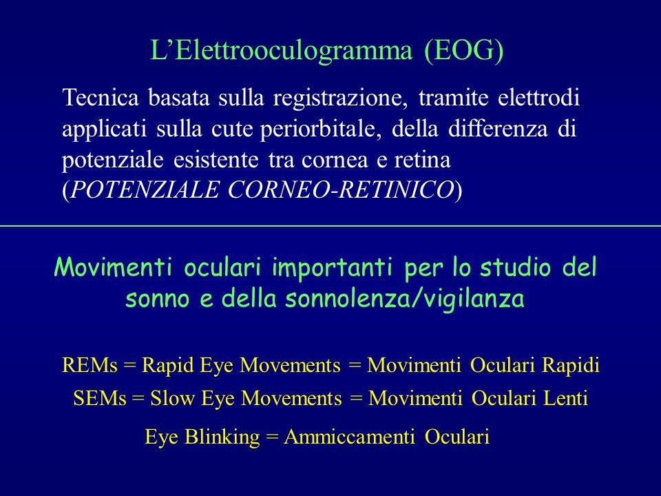 L'Elettrooculogramma (EOG)
