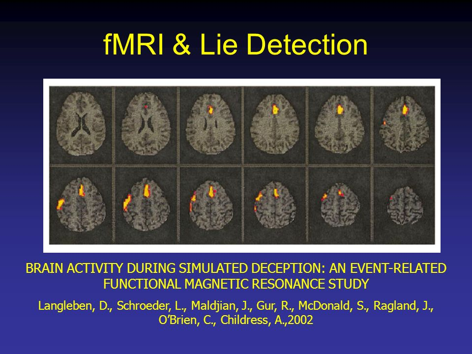 fMRI & Lie Detection BRAIN ACTIVITY DURING SIMULATED DECEPTION: AN EVENT-RELATED FUNCTIONAL MAGNETIC RESONANCE STUDY.