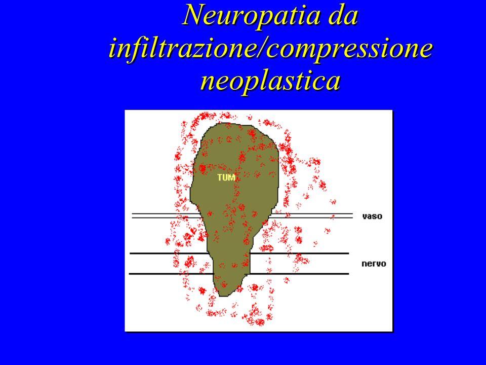 Neuropatia da infiltrazione/compressione neoplastica