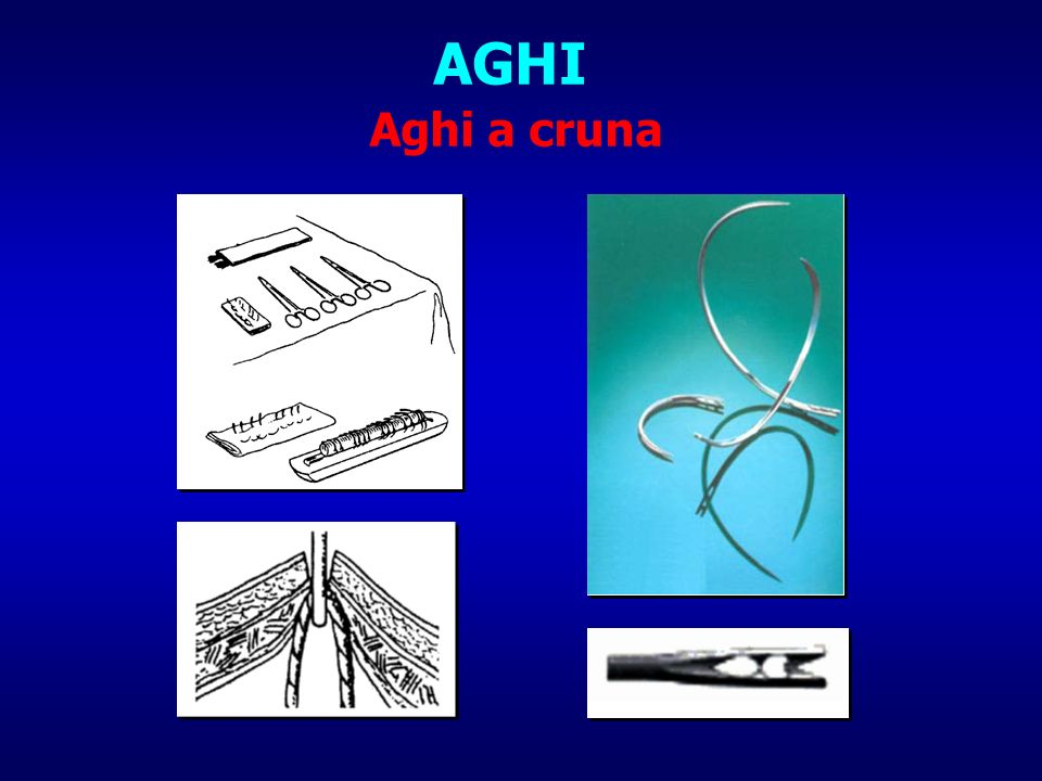 AGHI Aghi a cruna