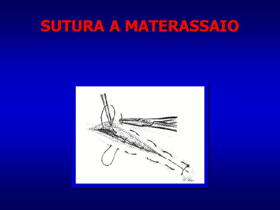 SUTURA A MATERASSAIO