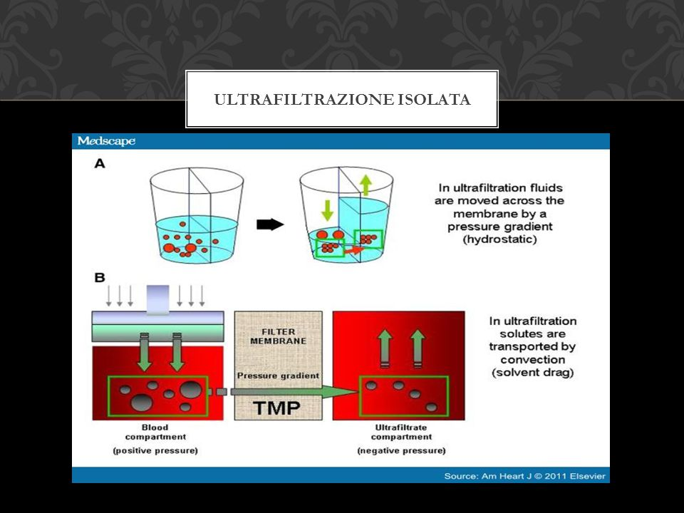 Ultrafiltrazione isolata