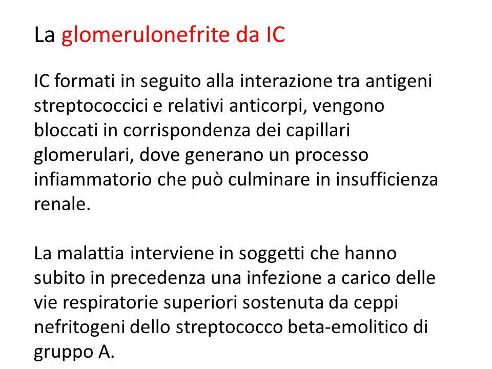 La glomerulonefrite da IC