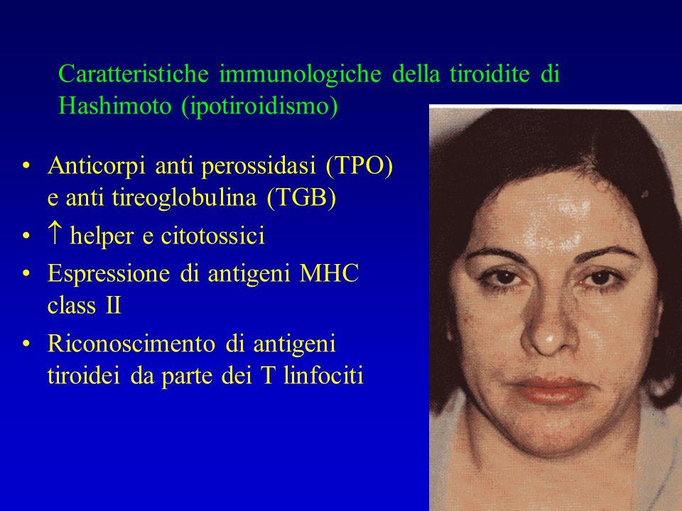 Caratteristiche immunologiche della tiroidite di Hashimoto (ipotiroidismo)