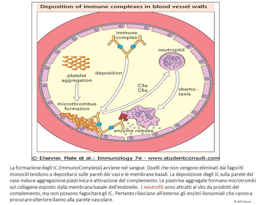 La deposizione degli IC sulla parete del vaso, oltre alla attivazione del complemento, induce aggregazione piastrinica. Le piastrine aggregate formano microtrombi sul collagene esposto dalla membrana basale dell endotelio. I neutrofili sono attratti al sito da prodotti del complemento, ma non possono fagocitare gli IC. Pertanto rilasciano all esterno gli enzimi lisosomiali che vanno a procurare ulteriore danno alla parete vascolare