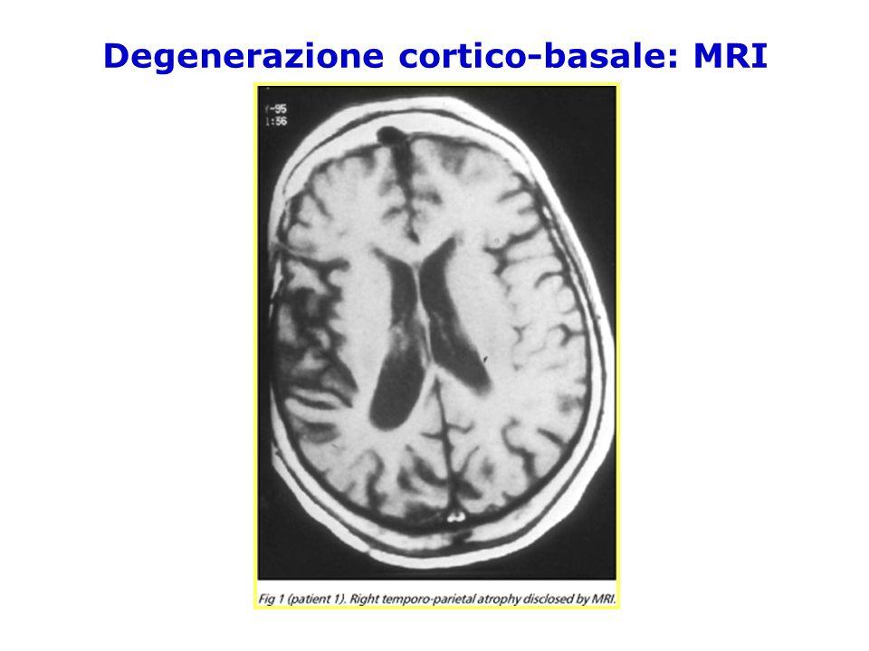 Degenerazione cortico-basale: MRI