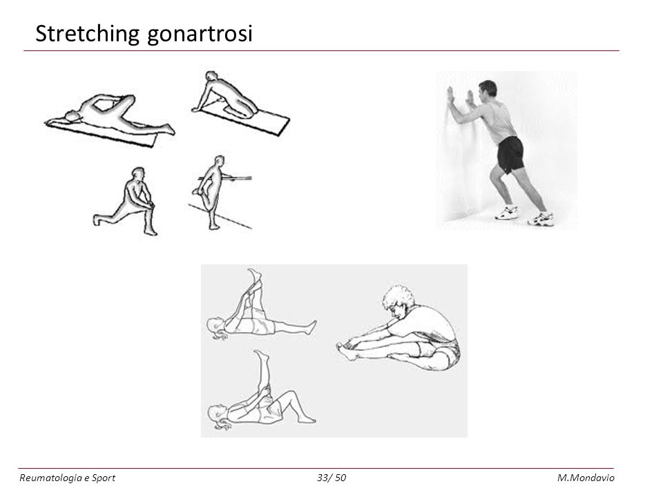 Stretching gonartrosi