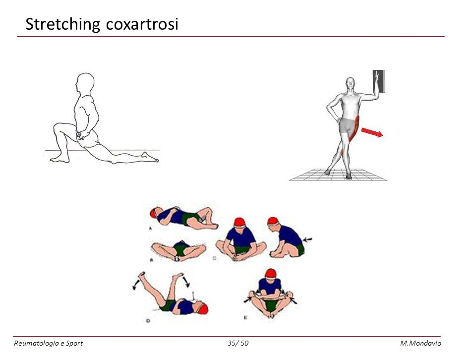 Stretching coxartrosi