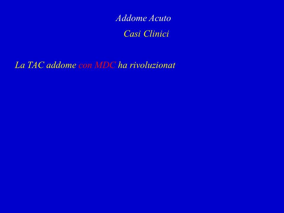 Addome Acuto Casi Clinici La TAC addome con MDC ha rivoluzionat