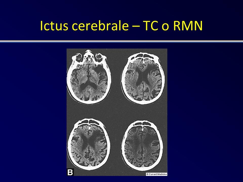 Ictus cerebrale – TC o RMN