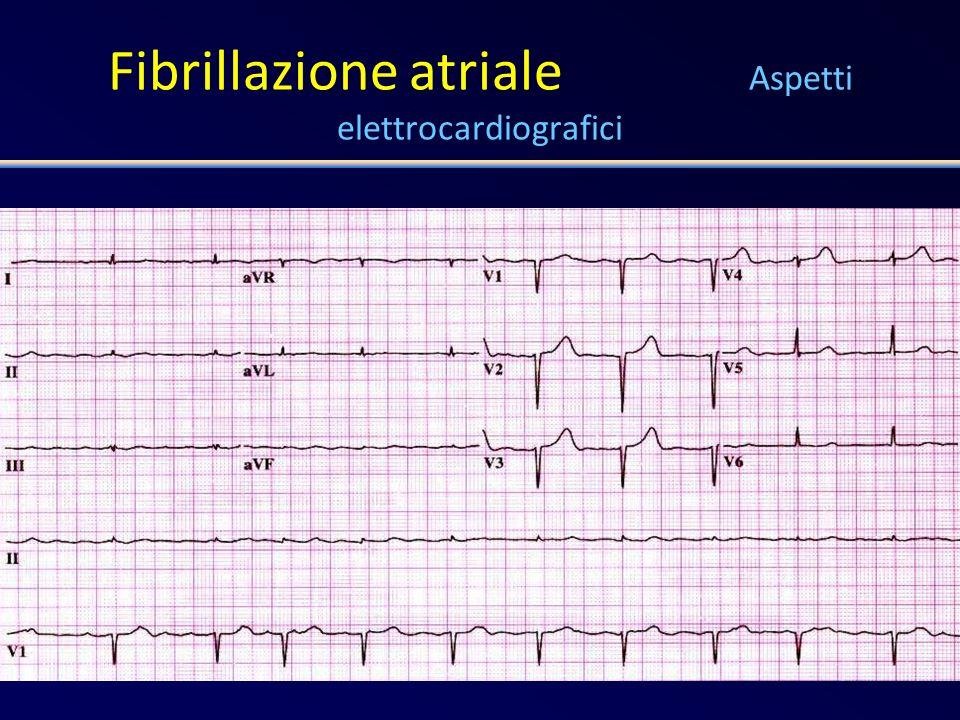 Fibrillazione atriale Aspetti elettrocardiografici