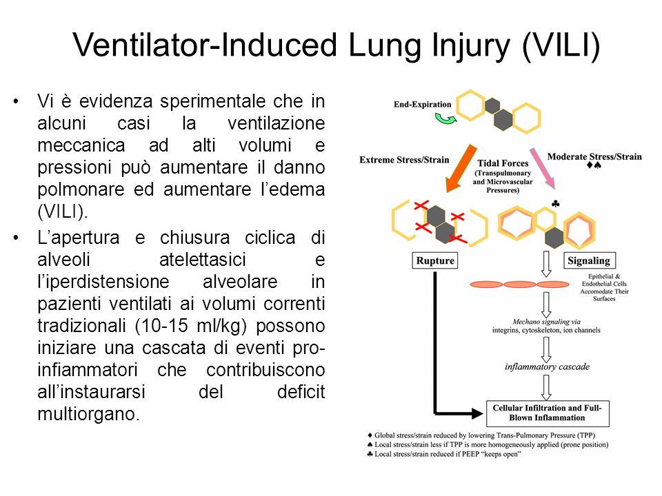 Ventilator-Induced Lung Injury (VILI)