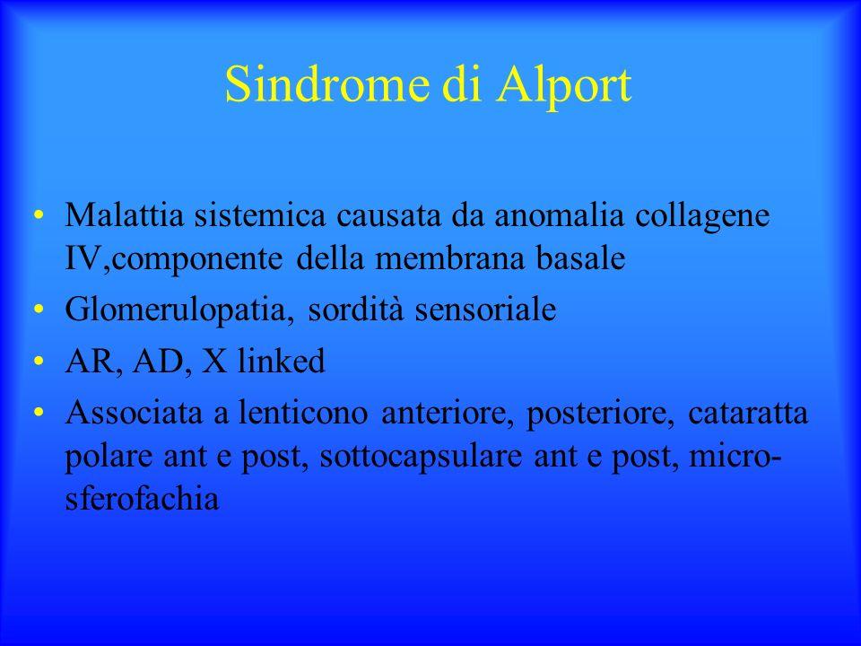 Sindrome di Alport Malattia sistemica causata da anomalia collagene IV,componente della membrana basale.