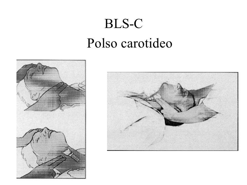 BLS-C Polso carotideo