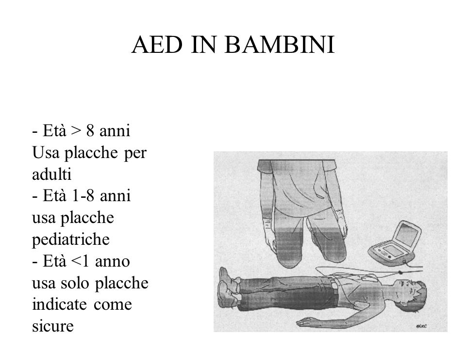 AED IN BAMBINI