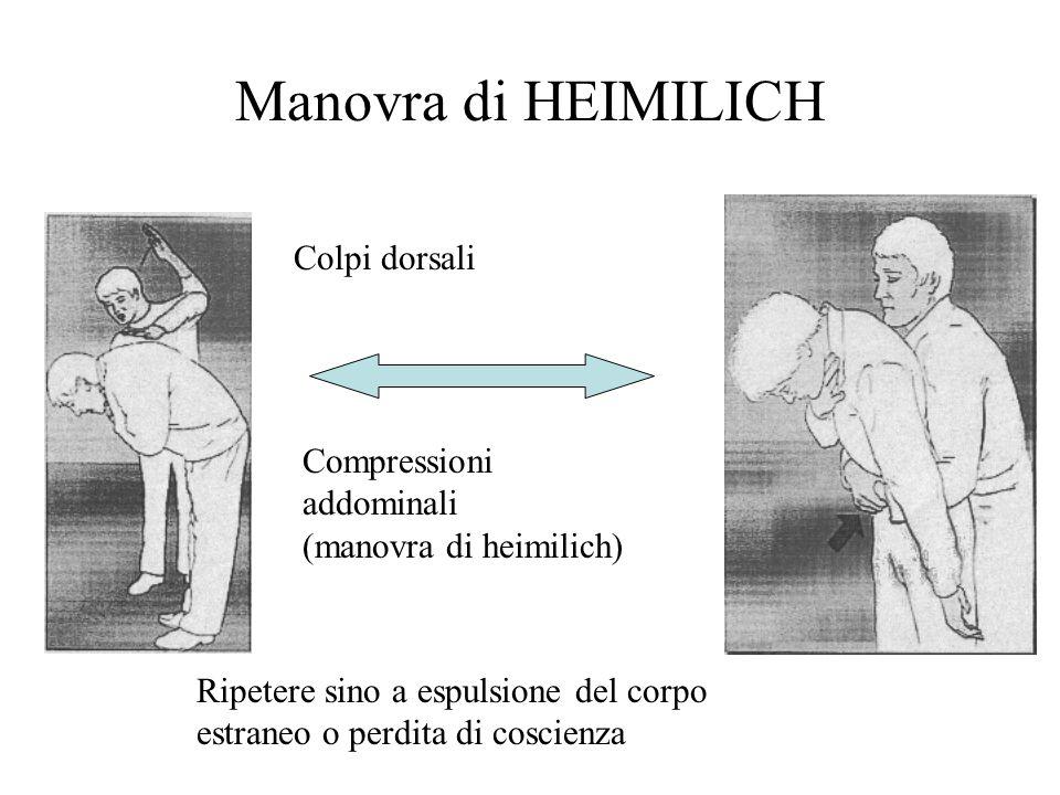 Manovra di HEIMILICH Colpi dorsali