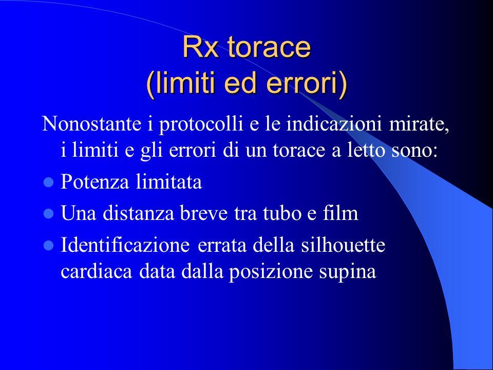 Rx torace (limiti ed errori)