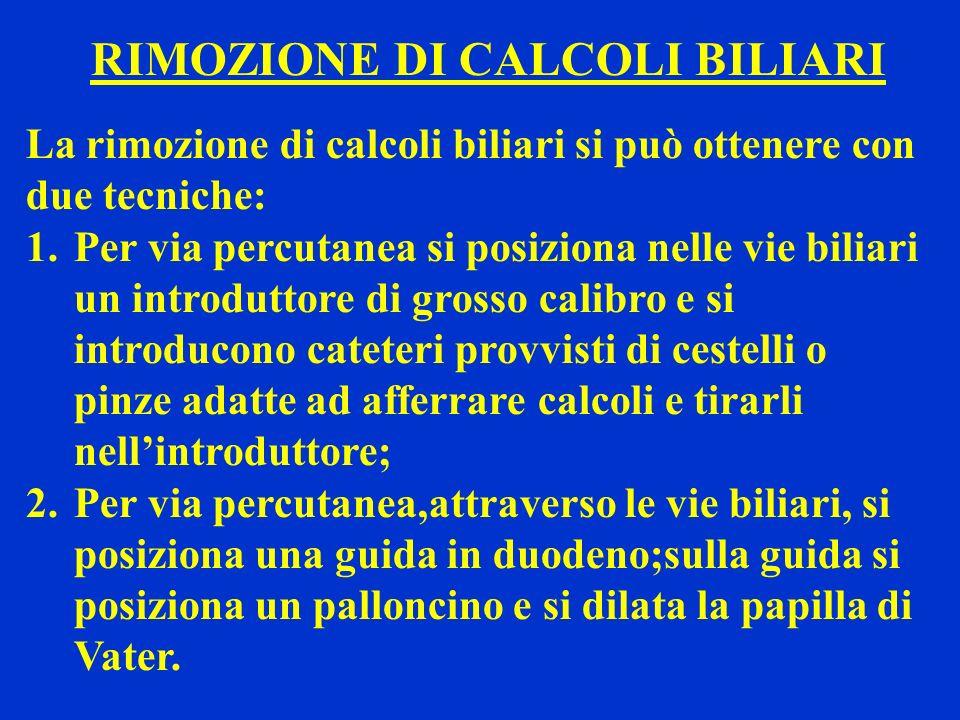 RIMOZIONE DI CALCOLI BILIARI