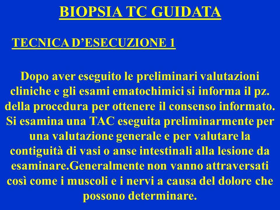 BIOPSIA TC GUIDATA TECNICA D'ESECUZIONE 1