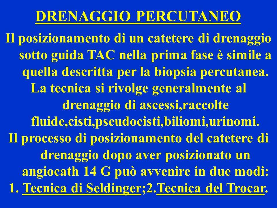 Tecnica di Seldinger;2.Tecnica del Trocar.