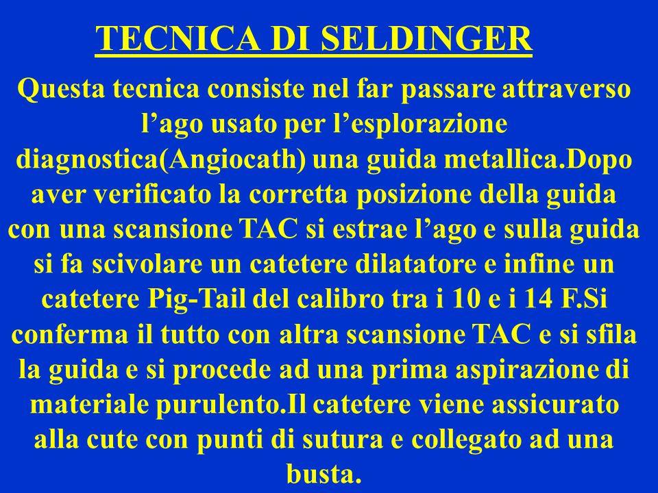 TECNICA DI SELDINGER