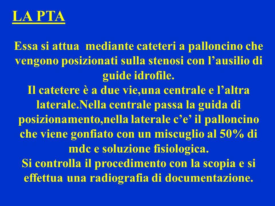 LA PTA Essa si attua mediante cateteri a palloncino che vengono posizionati sulla stenosi con l'ausilio di guide idrofile.
