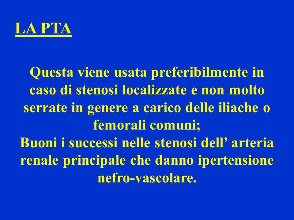 LA PTA Questa viene usata preferibilmente in caso di stenosi localizzate e non molto serrate in genere a carico delle iliache o femorali comuni;