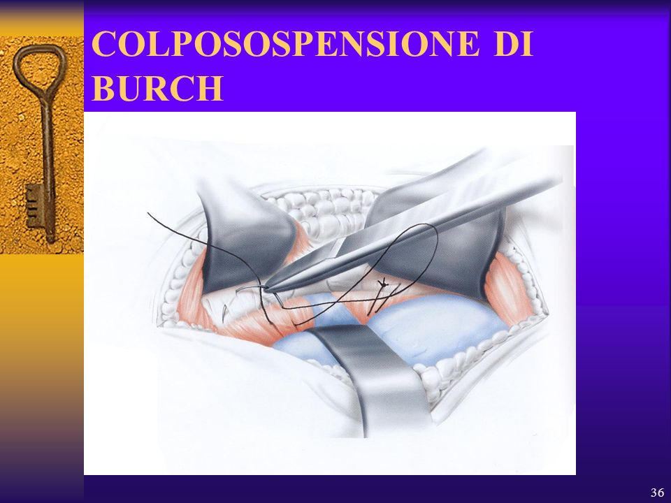 COLPOSOSPENSIONE DI BURCH