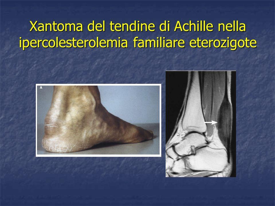 Xantoma del tendine di Achille nella ipercolesterolemia familiare eterozigote