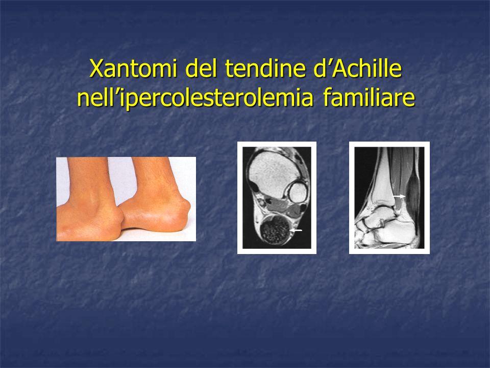 Xantomi del tendine d'Achille nell'ipercolesterolemia familiare